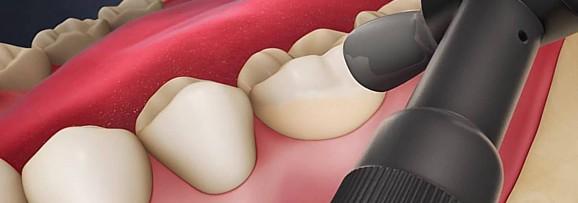 Полировка и шлифовка зубов