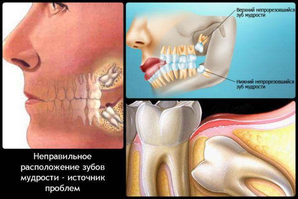 Неправильное расположение зубов мудрости — источник проблем