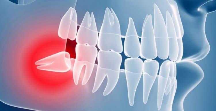 Ретинированный или дистопированный зуб