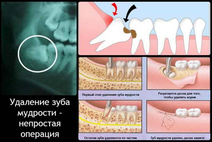 Типичное удаление зуба