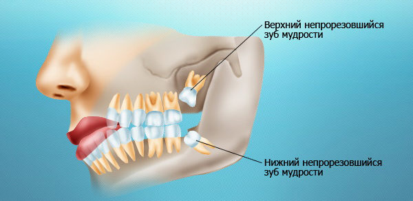 Зачем удалять непрорезавшиеся зубы мудрости