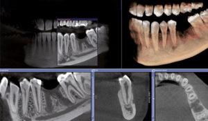 3D томография проводится для моделирования имплантации