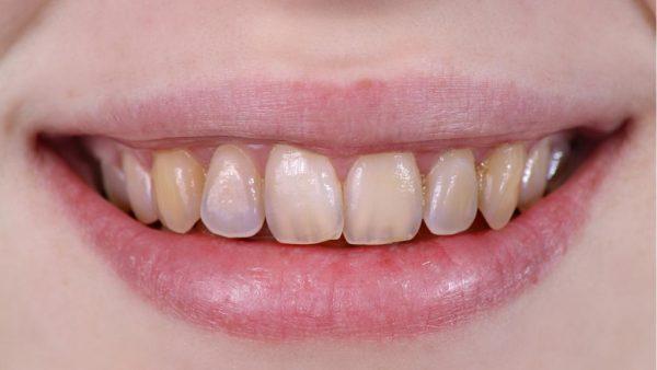 Боли могут ощущаться из-за истончения эмали зуба