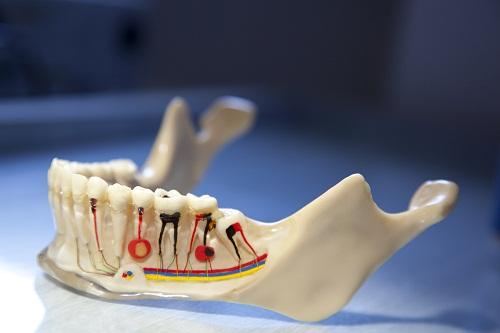 Болит зуб после удаления нерва, как быть?