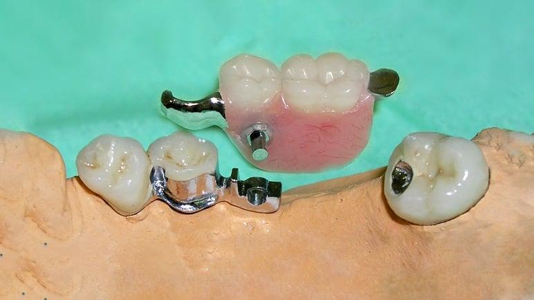 Бюгельный на 2 зуба