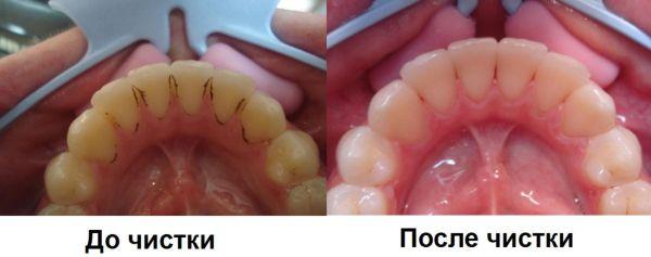 До и после