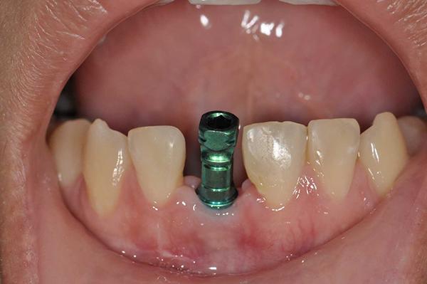 Долго ли длится операция по установке зуба?