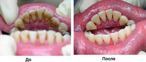 Если причиной боли стал зубной камень, то его удаляют
