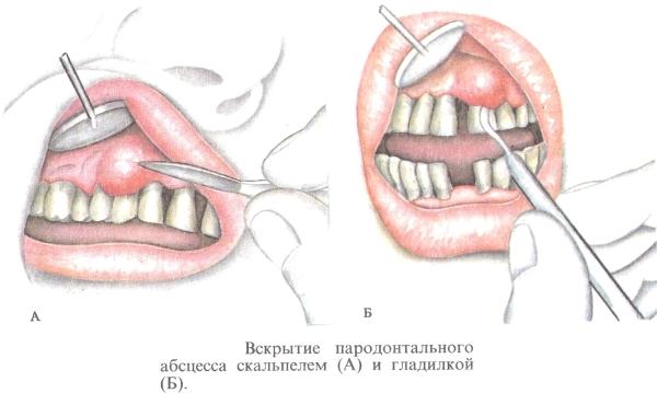 Этапы проведения операции. Как режут десну в стоматологии