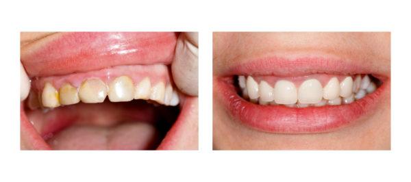 Фото пациента до и после установки композитных виниров