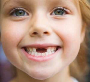 Как лечат молочные зубы у детей?
