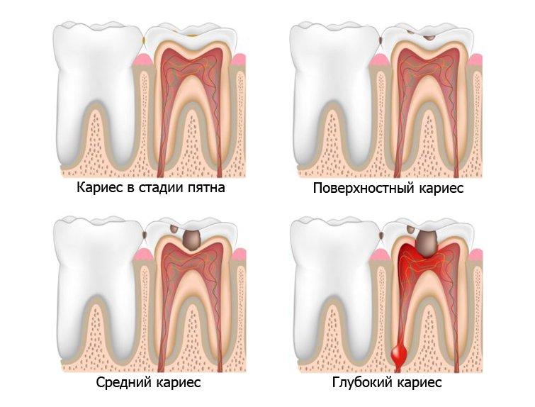 Как происходит разрушение зуба при глубоком кариесе