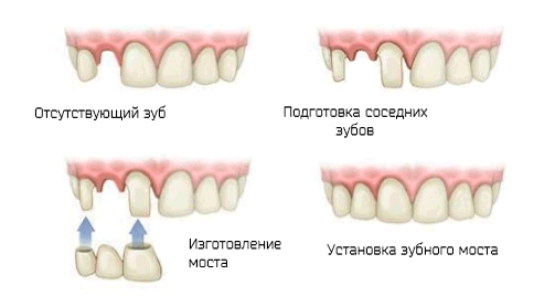 Как ставят мост на зубы
