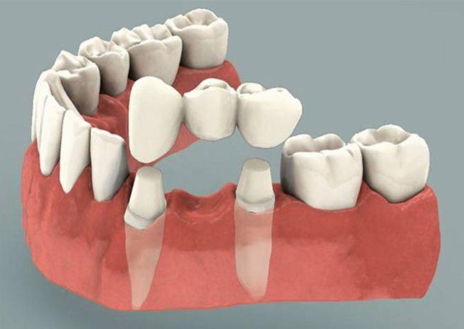 Как выглядит зубной мост и его конструкция