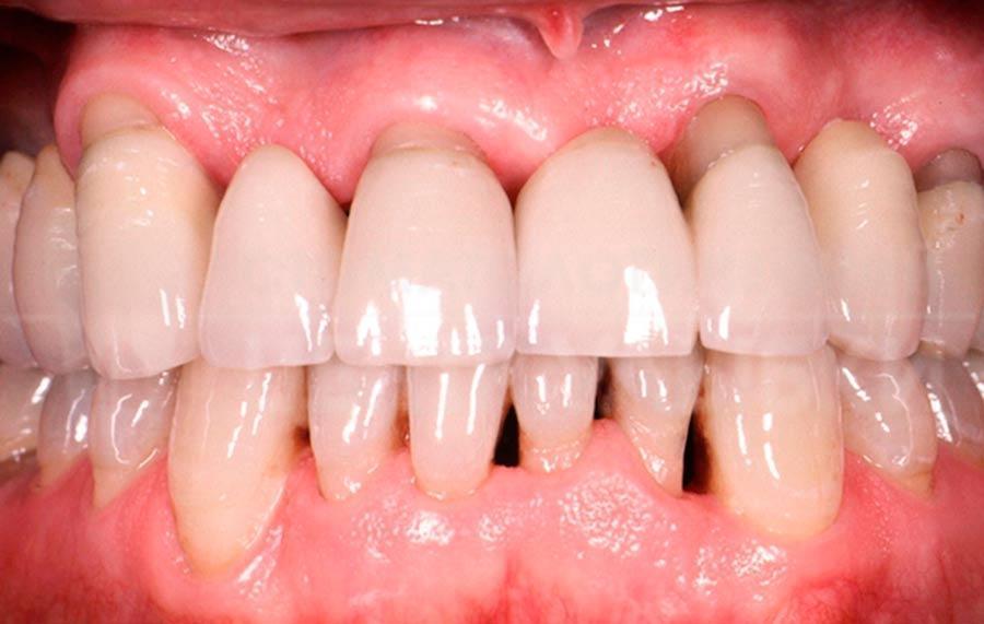 Лечение шатающихся зубовпри гингивите