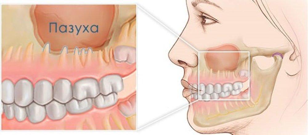 Лечение зубного гайморита