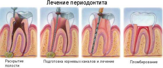 Методы лечения периодонтита