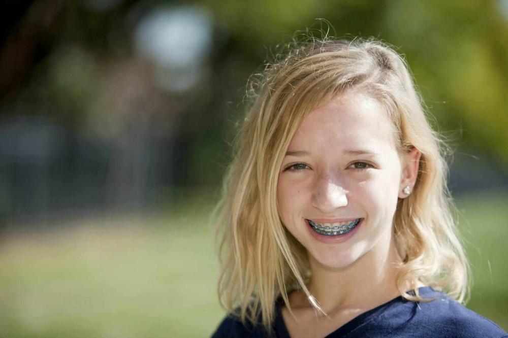 Новые зубы растут криво? Несколько слов о брекетах