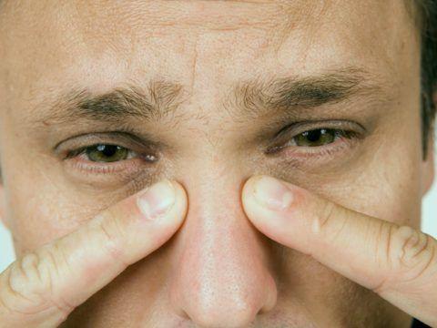 Одним из характерных признаков патологии является боль в области крыльев носа