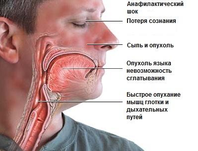 Осложнения анестезии при удалении зубов
