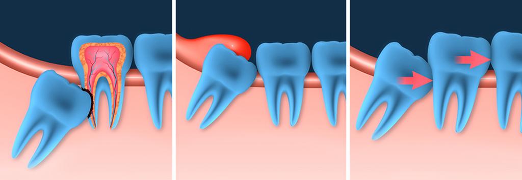 Осложнения при росте зубов мудрости
