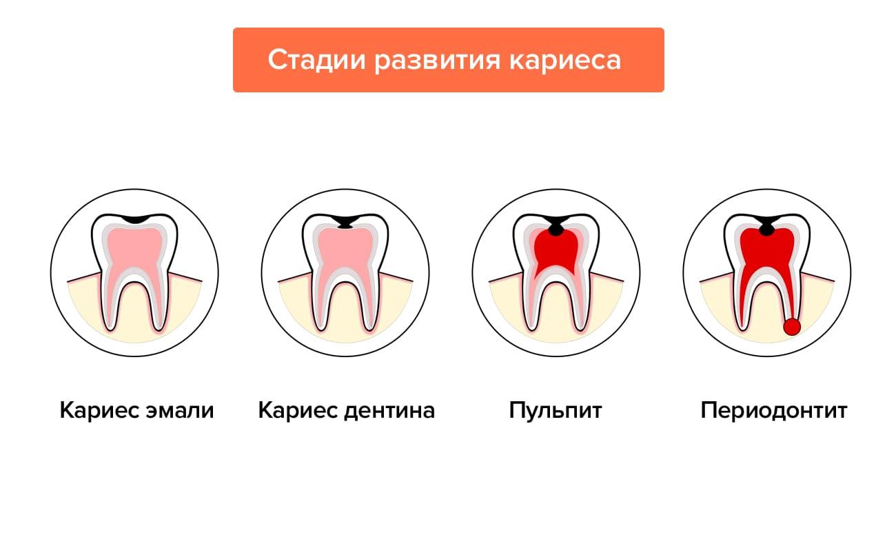 Особенности кариеса корня зуба