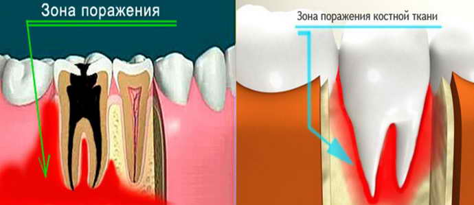 Остеомиелит челюстной кости