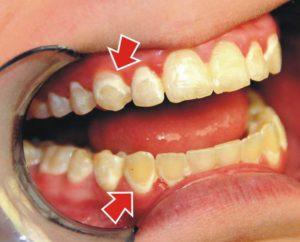 Отчего возникает необходимость вотбеливании зубов?
