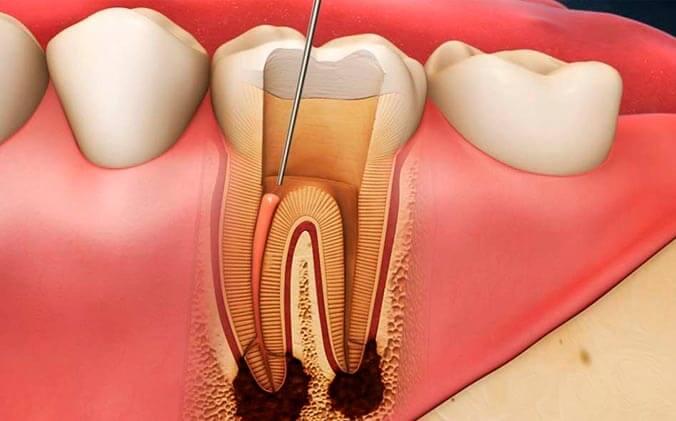 После удаления нерва болит зуб при надкусывании