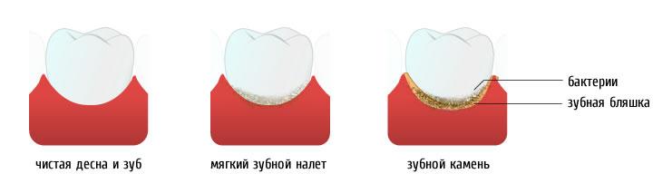 Почему образуется зубной камень?