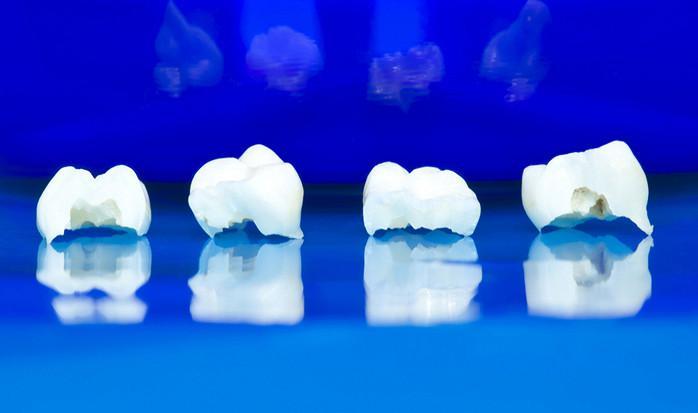 Почему появляются «акульи» зубки