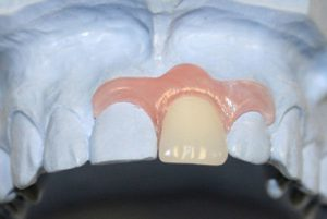временный протез на зуб