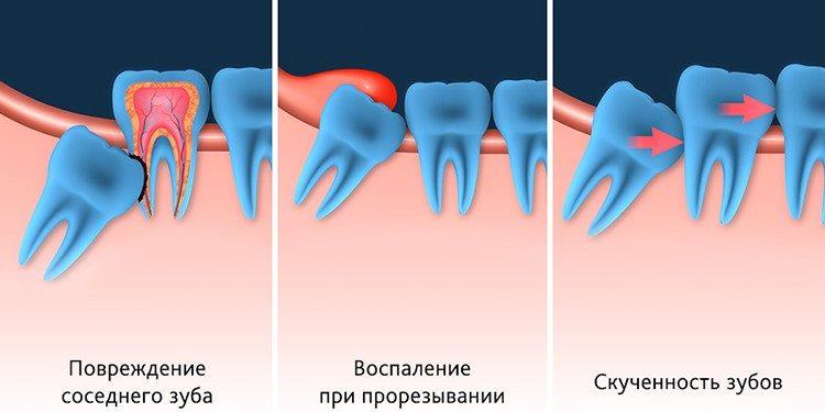Проблемы с зубами мудрости