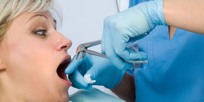После удаления зуба мудрости болят соседние зубы