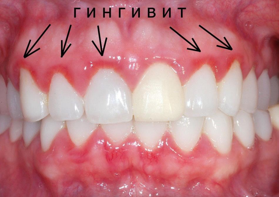 Шатаются передние зубы