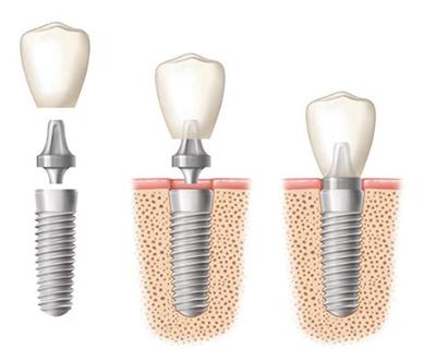 Сколько по времени занимает протезирование зубов