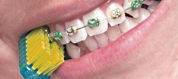 Специальные зубные щетки