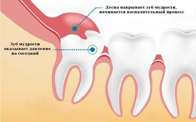Специфика прорезывания зуба мудрости