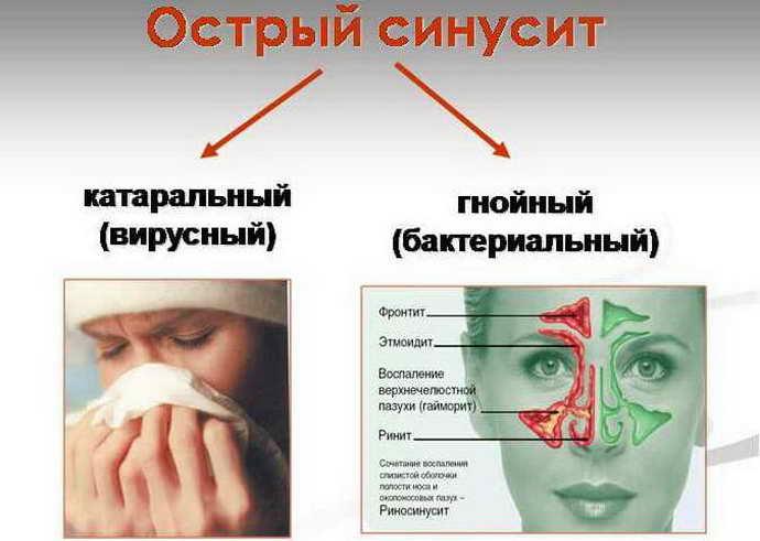 Среднее течение заболевания
