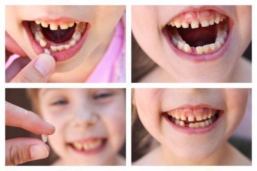 Удаление молочных зубов не вызывает сильной боли