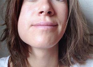 Уход за ртом после удаления зуба