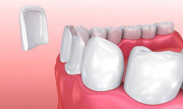Установка зубного винира