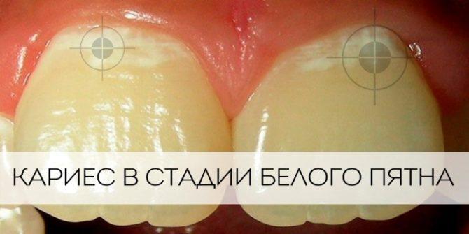 Устранение зубной боли при кариесе