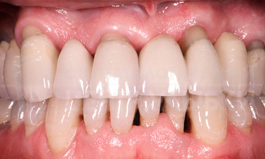 Воспаление десен может привести к чувствительности зубов