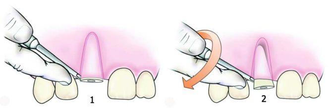 зуб раскрошился