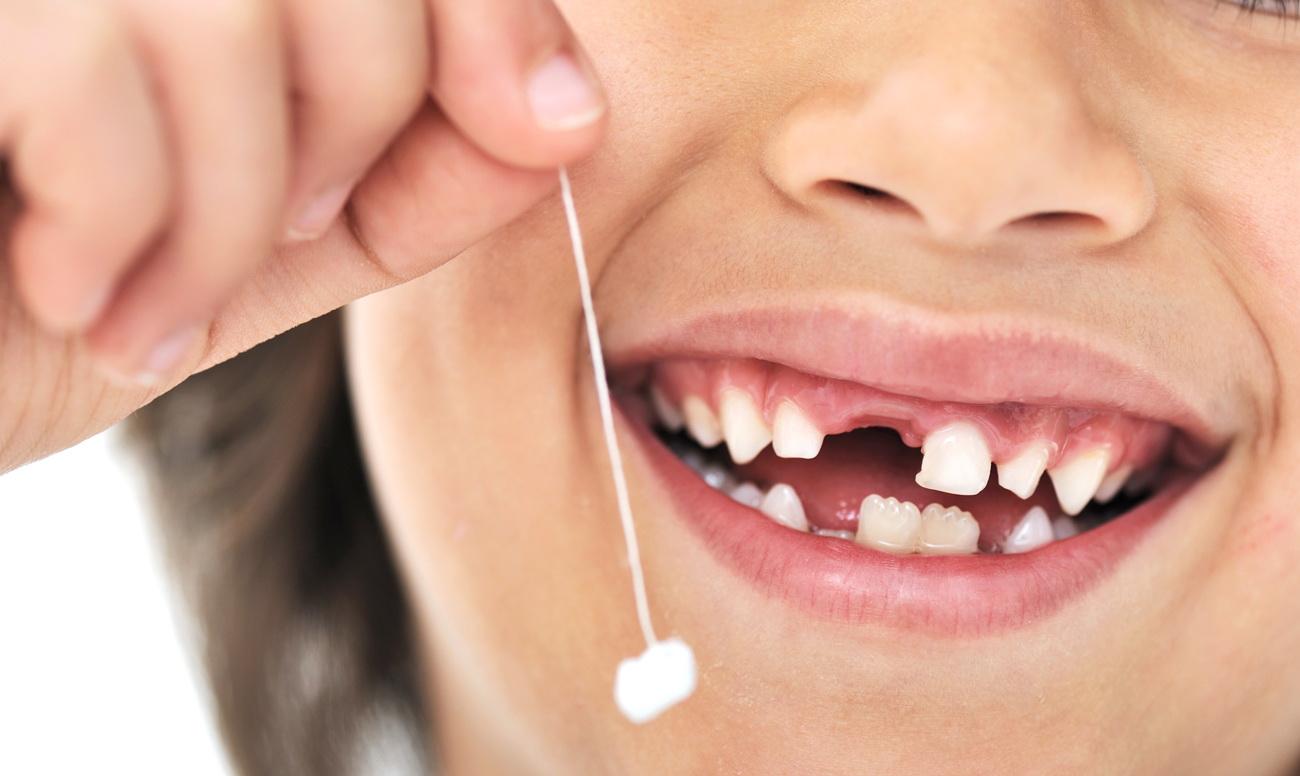 Что предпринять, если остался корень после удаления зуба?