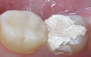 Что происходит с зубом?