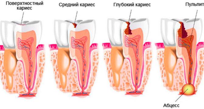 Как и почему происходит гниение зубов