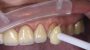 Материал подбирается под цвет эмали пациента.