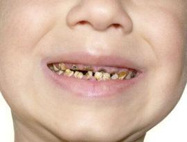 Почему гниют зубы у детей